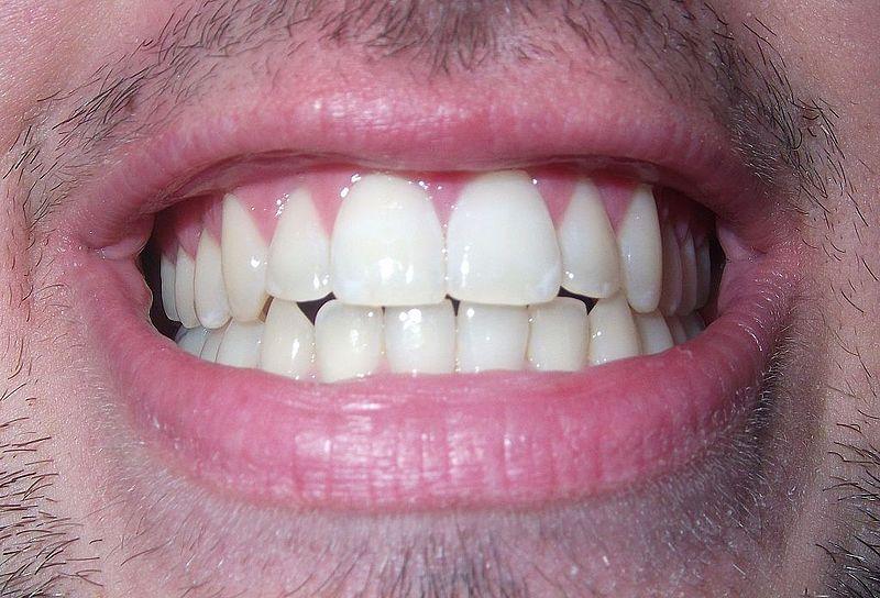צילום שיניים