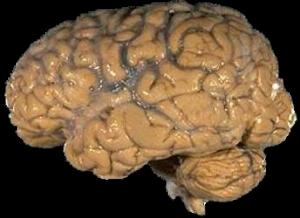 צילום מוח