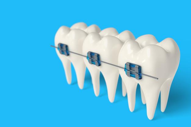 שיניים בשורה