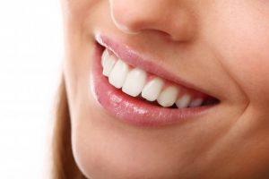 חיוך חושף שיניים